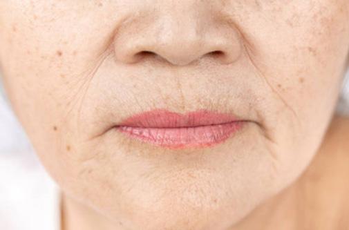 Papilkėjusi veido oda