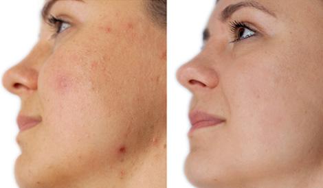ODA Klinika atsiliepimai veido valymas Agnė