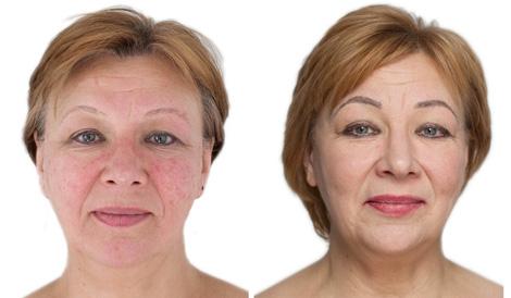 ODA Klinika atsiliepimai veido raudonis gydymas Danguolė