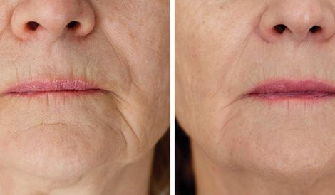 ODA Klinika atsiliepimai pigmentinės demės Feonija