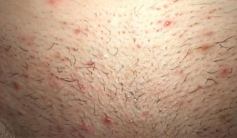 Įaugę plaukai po depiliacijos